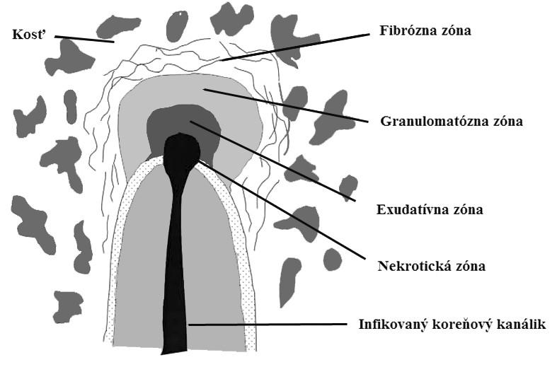 Histologická štruktúra chronickej periapikálnej zápalovej lézie [9] Fig. 2. Histological structure of a chronic periapical inflammatory lesion [9]