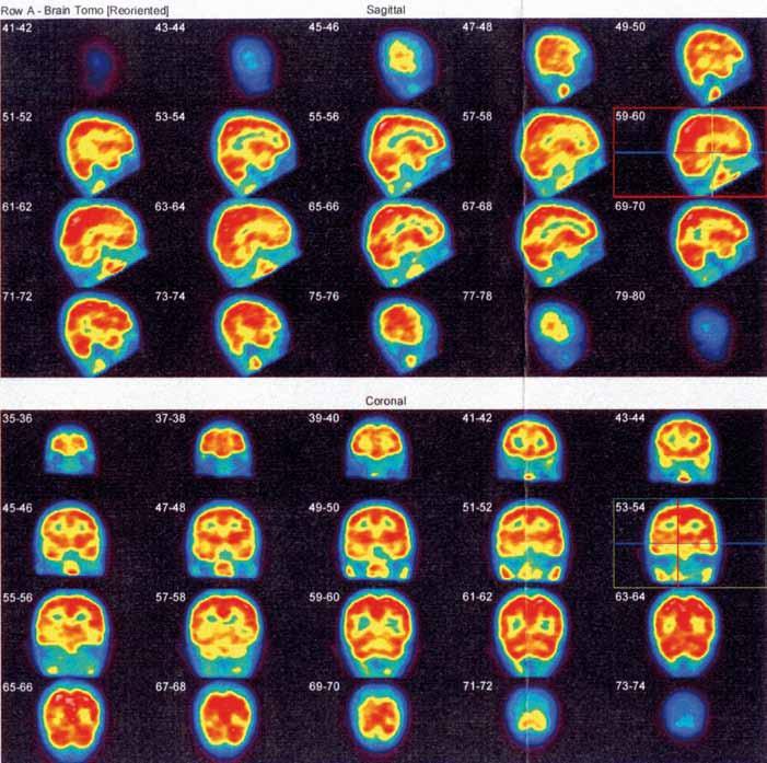 Obr. 6a. Kontrolní SPECT vyšetření mozku rovněž neprokazuje ložiskovou poruchu relativní mozkové perfuze.