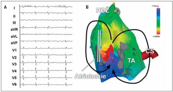 (A) EKG-záznam síňové tachykardie s měnlivým AV-převodem u pacienta po korekci vrozené srdeční vady. Morfologie arytmie na EKG nevylučuje typický flutter síní. (B) Elektroanatomická mapa pravé síně v předozadní projekci při síňové tachykardii. Arytmie je tvořena 2 okruhy, z nichž jeden krouží okolo jizvy po atriotomii na laterální stěně pravé síně a druhý okolo trikuspidálního ústí. Oba okruhy mají společný istmus mezi jizvou po atriotomii a trikuspidálním ústím.