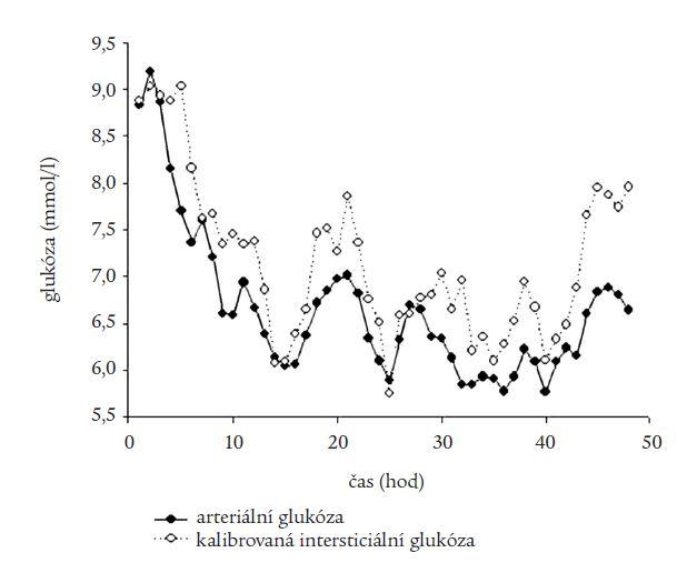 Srovnání arteriálních a intersticiálních hladin glukózy po přepočtu pomocí metody jednobodové kalibrace.