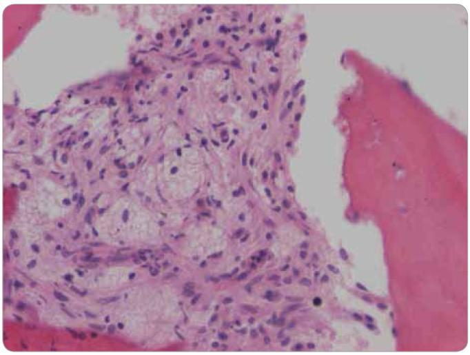 Histologické hodnocení válečku kostní dřeně. Barvení hematoxylin – eozin, zvětšení 200x. Pěnité a vřetenité histiocyty nahrazují hemopoetické buňky kostní dřeně.