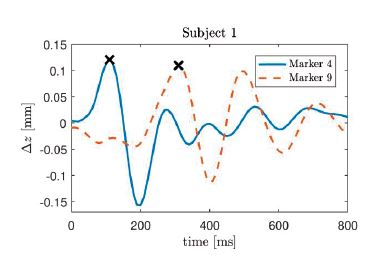 Impulse response of the z-component of cardiac induced thoracic movement for subject 1, markers 4 and 9. The each maximum value is marked with an x.