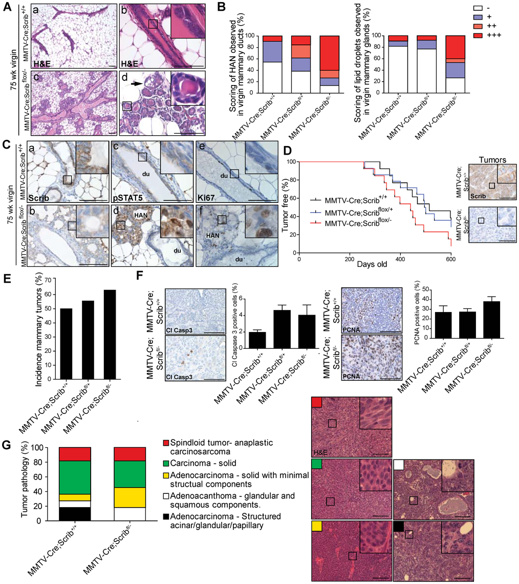 Scribble loss enhances mammary tumourigenesis.