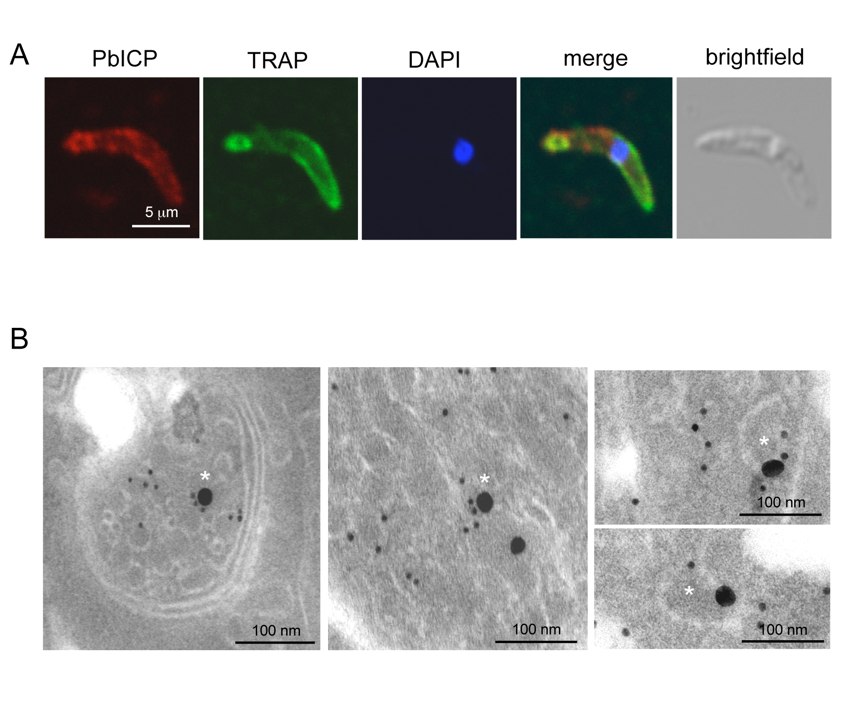 PbICP partially colocalizes with TRAP at the apical pole and in vesicles of sporozoites.