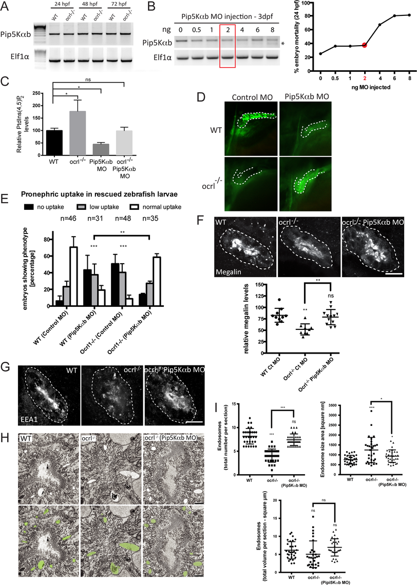 Rescue of the pronephric uptake defect in OCRL1 deficient embryos by suppression of PIP5K.