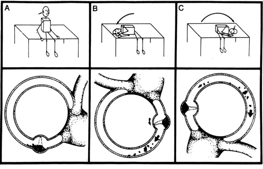 Schéma provedení Sémontova manévru při postižení pravého zadního polokruhového kanálku. Horní část obrázku zachycuje pohyb těla, dolní pak pohyb otokoniální hmoty v luminu polokruhového kanálku.