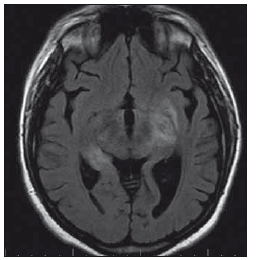 Pacientka 3 – MR nález encefalitidy v oblasti limbického systému a obou kapsul.