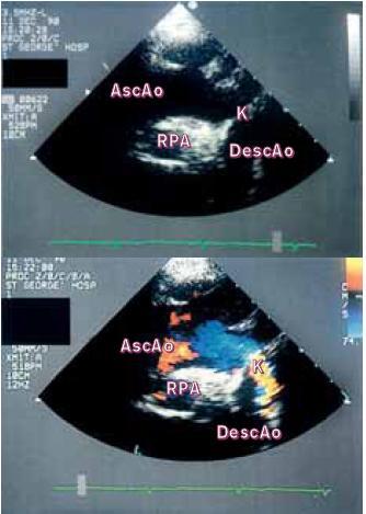 """(a) Suprasternální 2D-pohled ukazuje aortální oblouk a jeho tepny. Zřetelná """"přepážka"""" omezuje aortální lumen distálně od levé podklíčkové tepny. (b) Barevná dopplerovská echokardiografie zde ukazuje vysokou rychlost a turbulenci toku vlivem koarktace."""