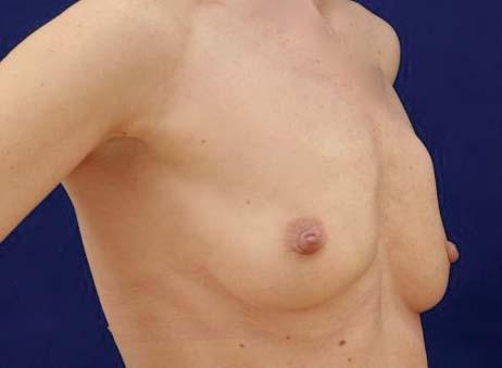 Viditelné kožní vyklenutí podmíněné karcinomem v oblasti horních kvadrantů levého prsu.