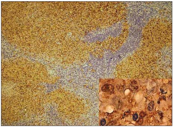 Obr. 7. Lymfatická uzlina, imunohistochemické barvení s protilátkou proti S100 proteinu: nádorové buňky vykazují rovněž pozitivitu S100 proteinu, což způsobuje hnědé nukleární i cytoplazmatické zbarvení (viz detail vpravo).