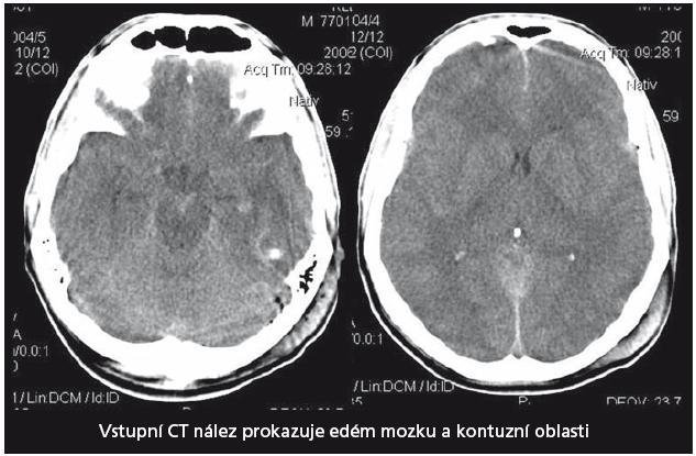 Vstupní CT vyšetření mozku u pacienta 1. Prokazuje naznačené mnohočetné kontuze a edém mozku.