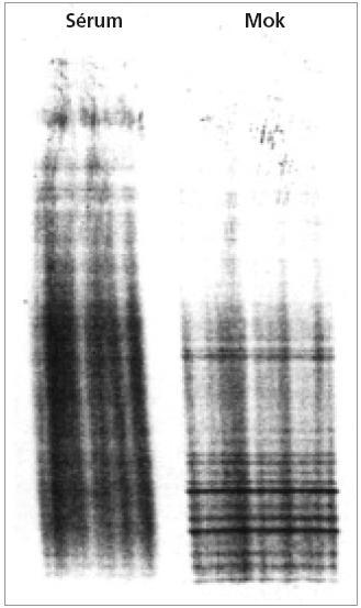 Přítomnost oligoklonálních IgG pásů v mozkomíšním moku, které nejsou v séru (z archivu vyšetření provedených autorem při stážích v neuroimunologické laboratoři v Innsbrucku, Rakousko, 2002 a 2003)
