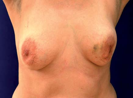 Defi gurace levého prsu s výslednou asymetrií. Vyklenutí a vtažení je způsobeno objemným levostranným karcinomem.