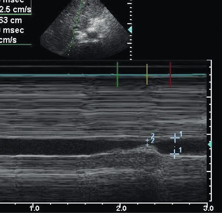 Vyšetření kolapsibility dolní duté žíly (IVC) Vydatně kolabující IVC implikující pozitivní odpověď na volumexpanzi.