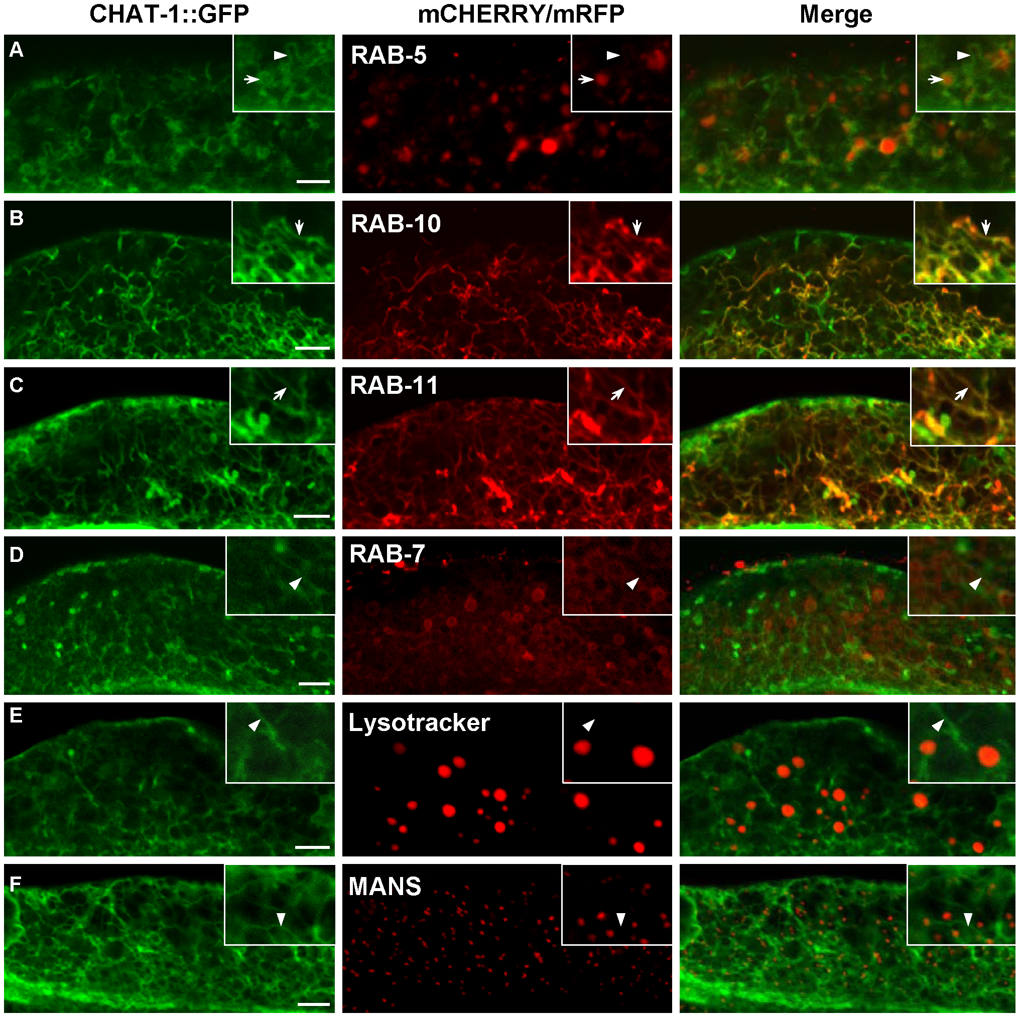CHAT-1::GFP labels tubular structures in the intestine.