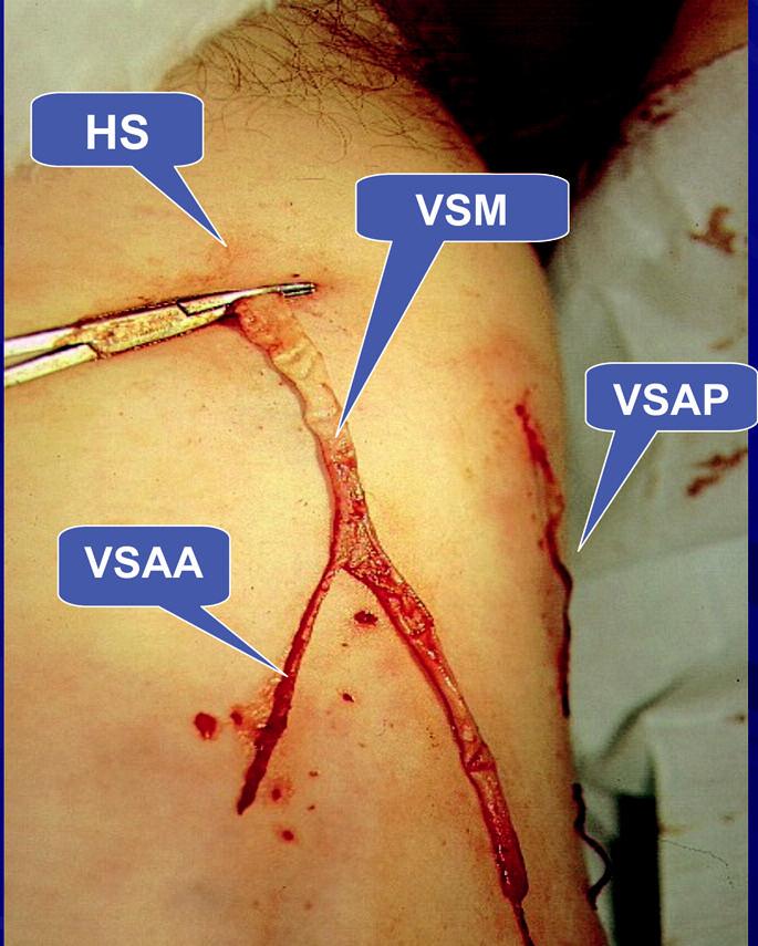 Safénový komplex typ II. Intrafasciální flebektomie celého safénového komplexu – VSM a z ní odstupující VSAA v oblasti HS probíhá mimo HS, nad fascia musularis má svůj samostatný průběh