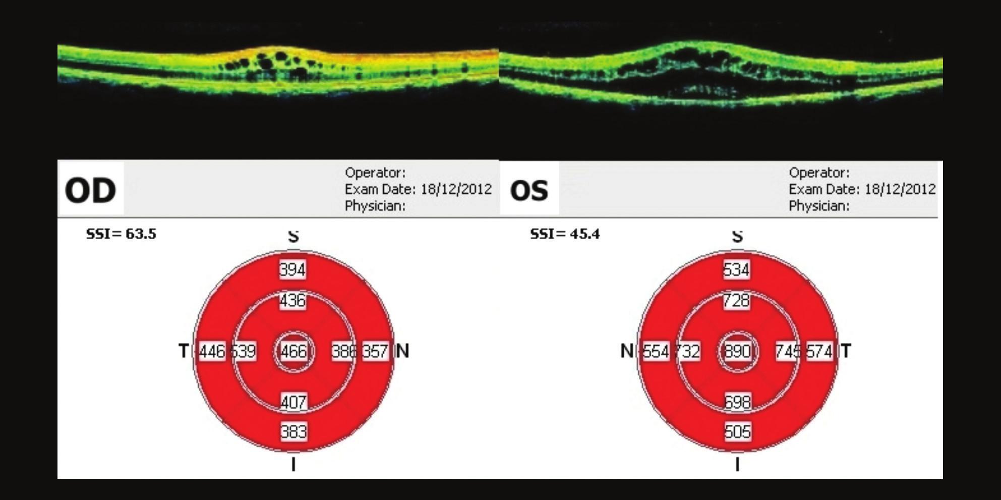 OCT makul OPL – 3 týdny po prvním vyšetření Na OP je CME vyšší než při prvním vyšetření. Na OP je ve fovee 466 μm, na OL je 890 um