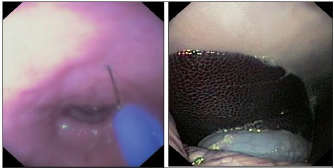 Transvaginální cholecystektomie