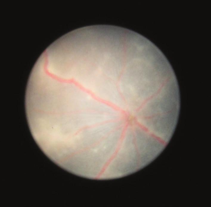 Fotografie fundu 25. den po indukci EAU, na sítnici jsou patrné granulární infiltráty, opouzdřené cévy a edém terče zrakového nervu
