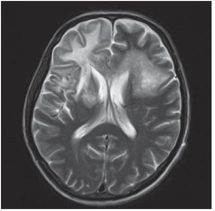 Masivní postižení bílé hmoty frontotemporálně subkortikálně, dále bazálních ganglií, vpravo v capsula interna a oboustranně periventrikulárně, které se projevuje vysokým signálem v T2W sekvenci MR zobrazení.