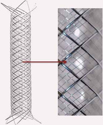 Tzv. Double Layer Mesh Stent Technology kombinující samoroztažitelný stent s uzavřenými buňkami s hustou nitinolovou sítí uvnitř stentu, kterou se dociluje optimálního pokrytí aterosklerotické léze.