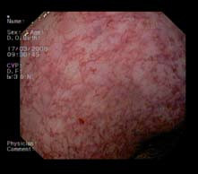 Sliznica rekta 24 mesiacov po ukončení liečby argón plazma koaguláciou. Fig. 5. Rectum mucosa 24 months after termination of argon plasma coagulation treatment.