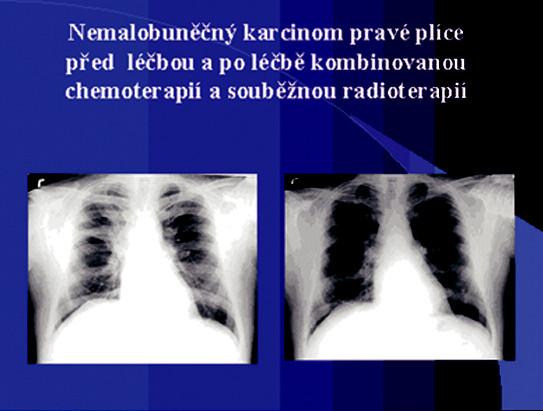 Nemalobuněčný karcinom pravé plíce před léčbou a po léčbě