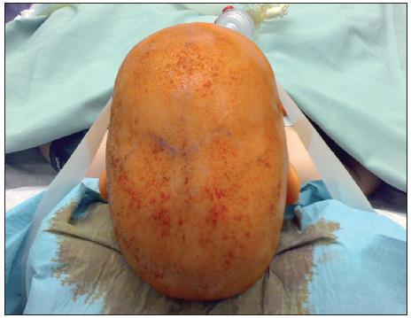 Fig. 1. Preoperative state in patient with dolichocephaly in four months.