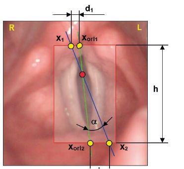 Schéma metody AxisConformity pro ohodnocení shody odhadu anatomické osy (x<sub>1</sub>, x<sub>2</sub>) a osy stanovené otorinolaryngologem (x<sub>orl1</sub>, x<sub>orl2</sub>).