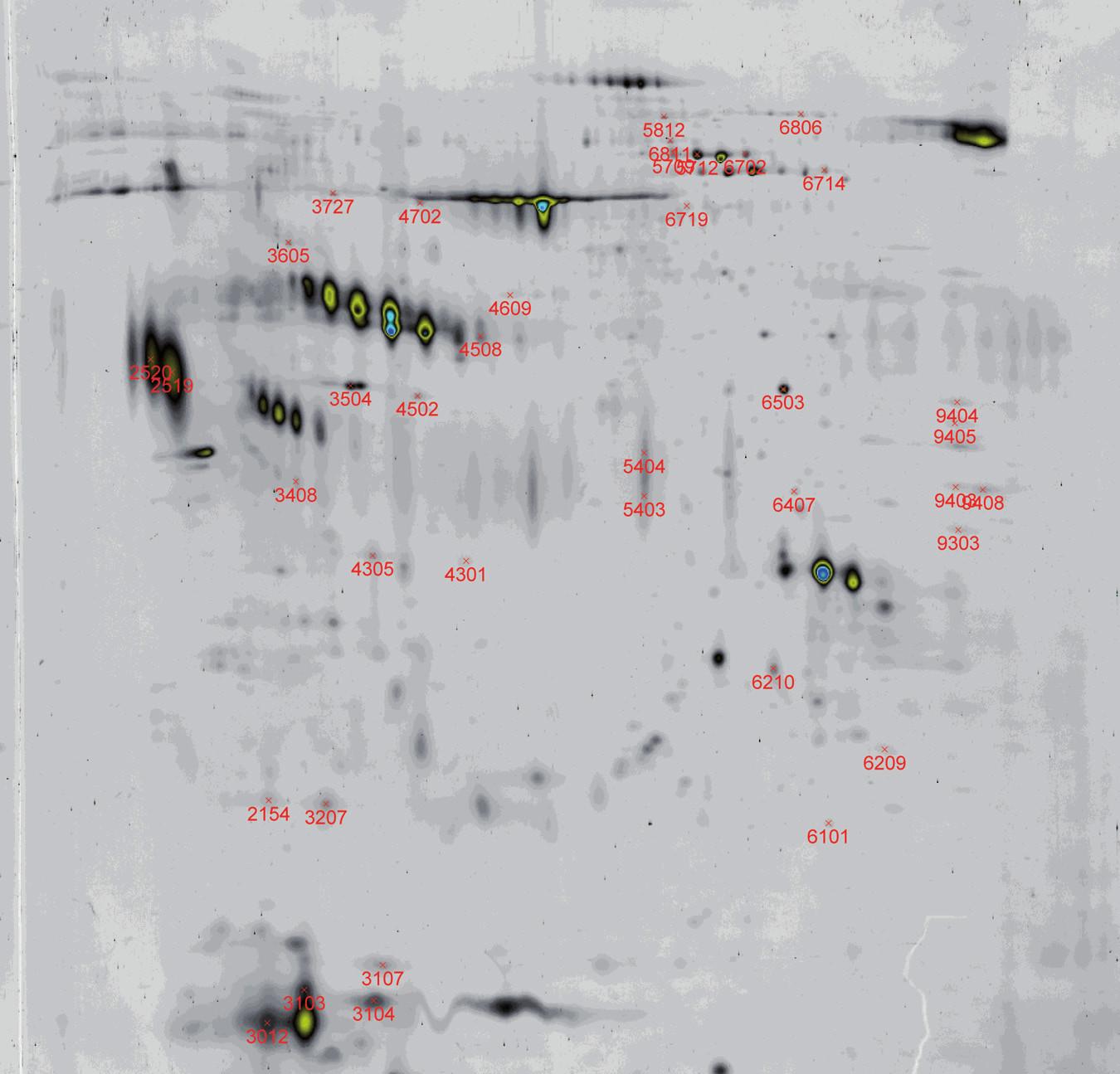 a, b. Vyhodnocení rozdílných spotů u vzorků azoospermie pomocí software PDQuest (2-DE seminální plazma, IEF 3–10 NL, SDS-PAGE 12 % T dva paralelní velké gely. Barvení: Sypro Ruby).