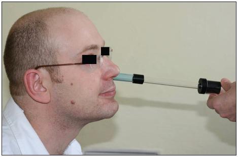 Vyšetření akustickou rinometrií.