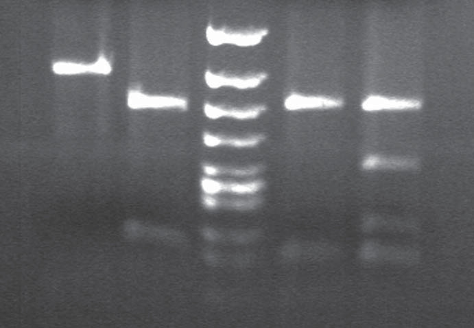 BsmA1 and HpyCHIV restriction patterns in gCJD patient homozygous for the mutation E200K.