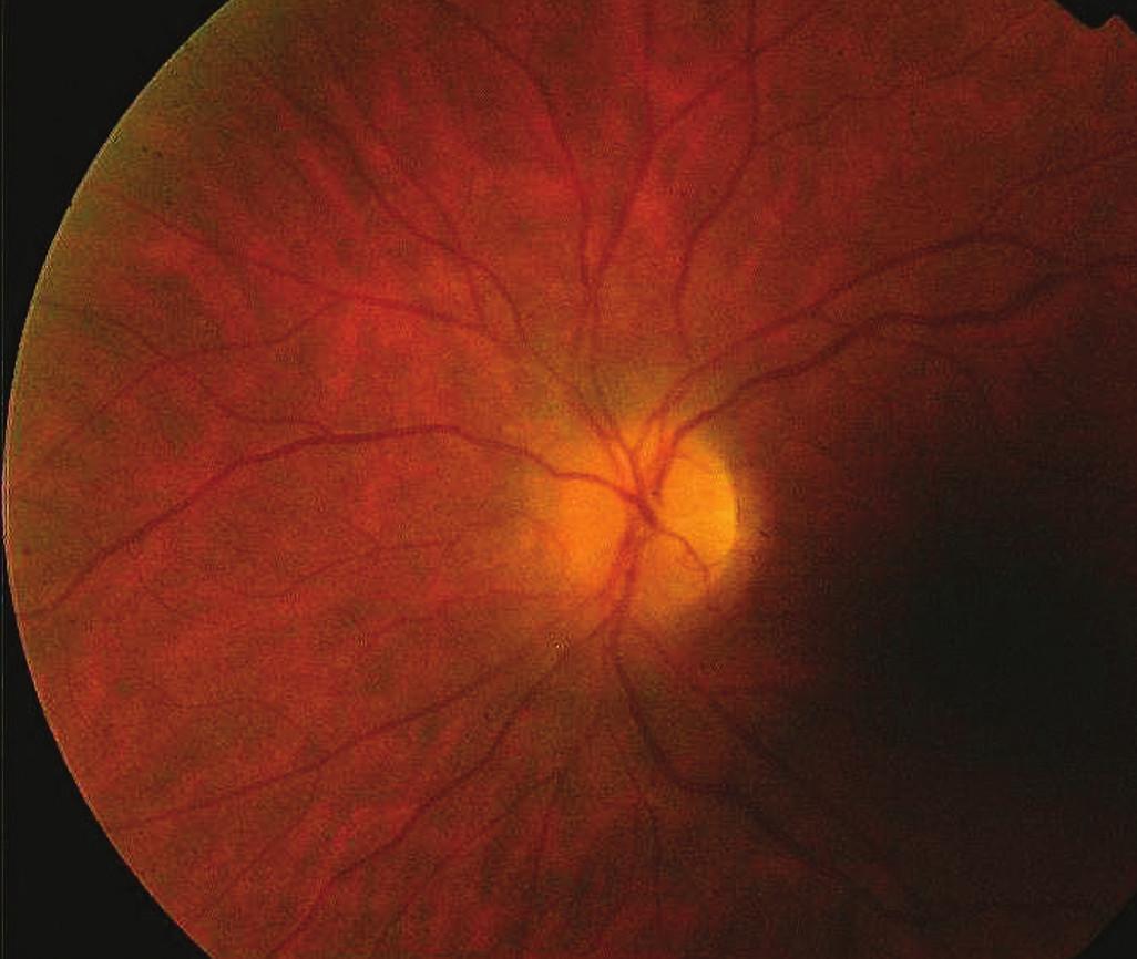 Obr. 1. Fundus před léčbou a) pravé oko b) levé oko