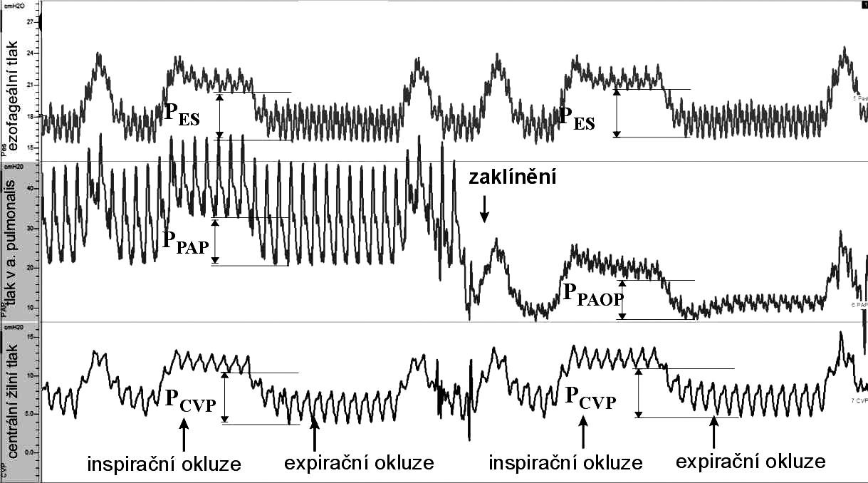 Schéma měření – ukázka měření (výstup z programu ScopeWin) Jednotlivé křivky tlaků (shora dolů: ezofageální tlak, tlak v a. pulmonalis a CVP) byly časově synchronizovány. V době inspiračního plateau a na konci exspiria byly proloženy přímky, a to v nejnižších bodech příslušných tlaků. Rozdíl inspiračních a exspiračních úrovní tlaků představoval změny ezofageálního tlaku (P<sub>ES</sub>), změny centrálního žilního tlaku (P<sub>CVP</sub>), tlaku v a. pulmonalis (P<sub>PAP</sub>) a změny tlaku v zaklínění (P<sub>PAOP</sub>).