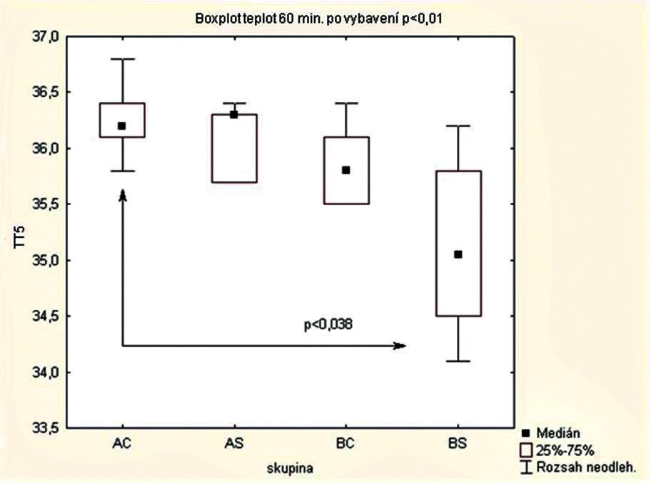 Porovnání tělesné teploty matek 60 minut po vybavení plodu AC – celková anestezie při podávání ohřátých roztoků N = 9, AS – subarachnoidální anestezie při podávání ohřátých roztoků N = 7, BC – celková anestezie při podávání roztoků o pokojové teplotě N = 7, BS – subarachnoidální anestezie při podávání roztoků o pokojové teplotě N = 6