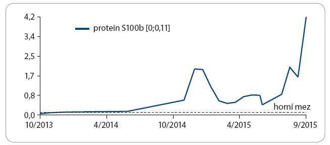 Vzestup hladiny S100 proteinu korelující s progresí melanomu.
