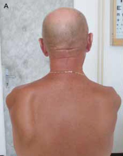 Obr. 4a) Pětašedesátiletý muž, sportovec, před 25 lety provedena operace sec. Foerster a Dandy. Pokles ramen, odstávající lopatky.