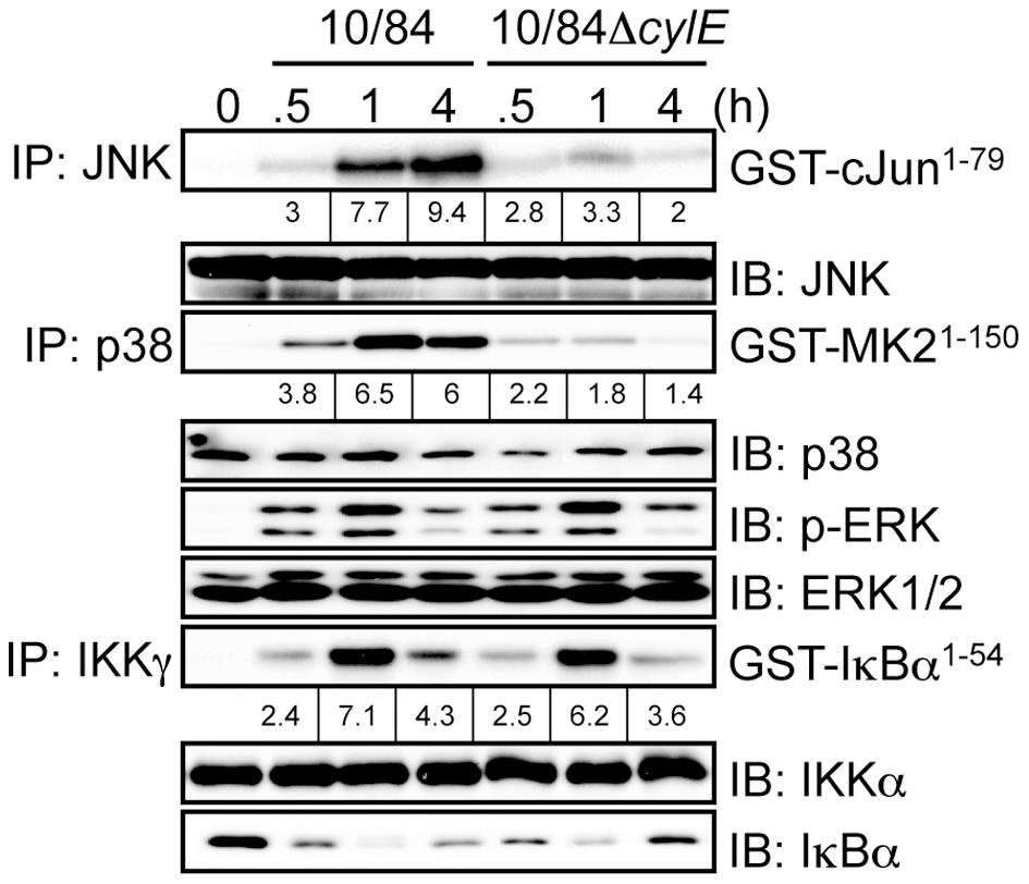 βh/c increases JNK and p38 MAPK activation in GBS infected macrophages.