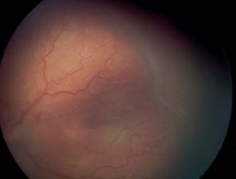 ROP 3. štádium – val s výraznými extraretinálnymi fibrovaskulárnymi proliferáciami s tortuozitou a dilatáciou ciev – plus štádium.