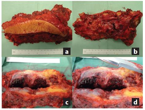 a,b,c,d: a) Snímek preparátu resekátu sterna z ventrální kožní strany; b) Snímek preparátu s viditelnými resekovanými částmi žeber z jeho dorzální strany; c) Řez exstirpované metastázy renálního karcinomu s lokální destrukcí a prokrvácením ; d) Detail lokální destrukce. Fig. 7 a,b,c,d: a) Picture of specimen from its ventral skin side; b) Picture of specimen with visible resected parts of ribs from the dorsal side; c) Postoperative image of specimen showing local destruction and bleeding; d) Detail of local destruction.