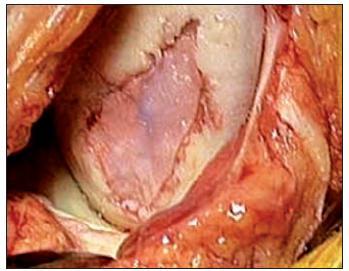 Implantácia autológnych chondrocytov – operačná technika