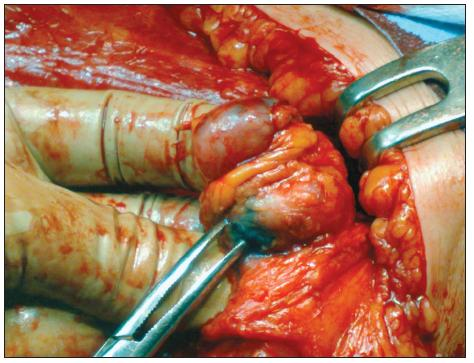1. Exstirpácia SU pri ablácii prsníka po aplikácii systémovej liečby Fig. 1. Exstirpation of the sentinel lymph node during the breast ablation procedure following administration of systemic therapy