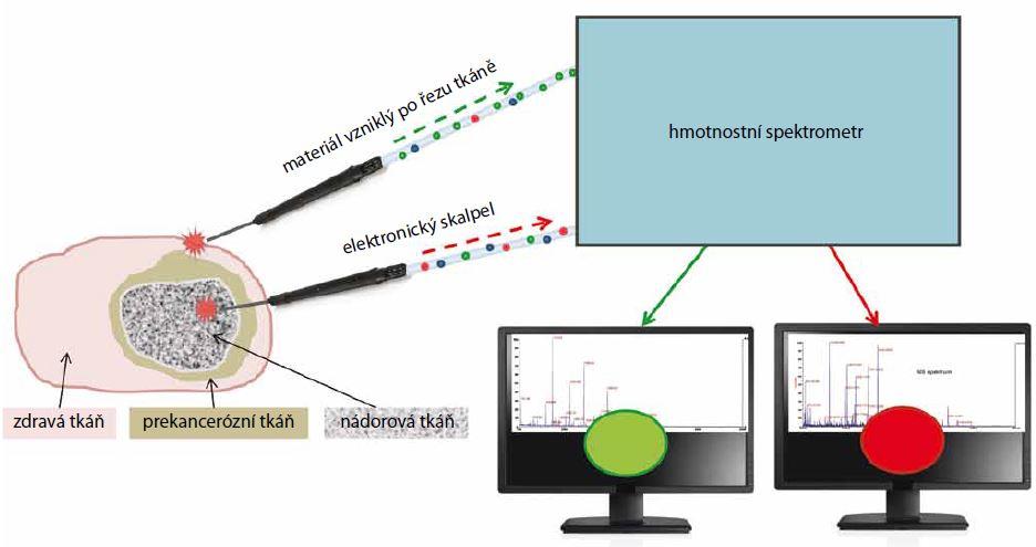 Schematický nákres intraoperativní hmotnostní spektrometrie (REIMS). Elektronický nůž po dotyku s tkání vytváří aerosol částic, které jsou vysušeny, ionizovány a vedeny do hmotnostního spektrometru, kde jsou analyzovány. Naměřená hmotnostní spektra jsou porovnávána s příslušnou databází a výsledek je signalizován na obrazovce. Pokud se elektronický skalpel pohybuje v oblasti nádoru, svítí na monitoru červené světlo. Když se posune do oblasti zdravé tkáně, signalizace na obrazovce se změní na zelené světlo. Chirurg tak získává informaci v reálném čase, že oblast nádoru je odstraněna.