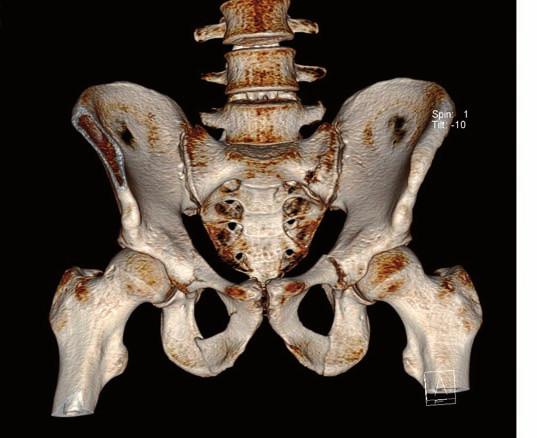 Konzervativně léčená zlomenina pánve typ 62B1 dle AO