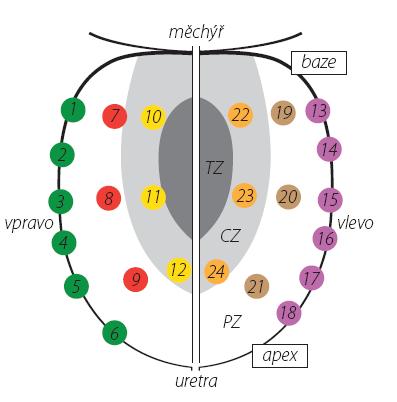 Schéma rozmístění vzorků při saturační biopsii prostaty TZ – tranzitorní zóna, CZ – centrální zóna, PZ – periferní zóna Fig. 1. Localization of biopsy cores in saturation prostate biopsy TZ – transition zone, CZ – central zone, PZ – peripheral zone