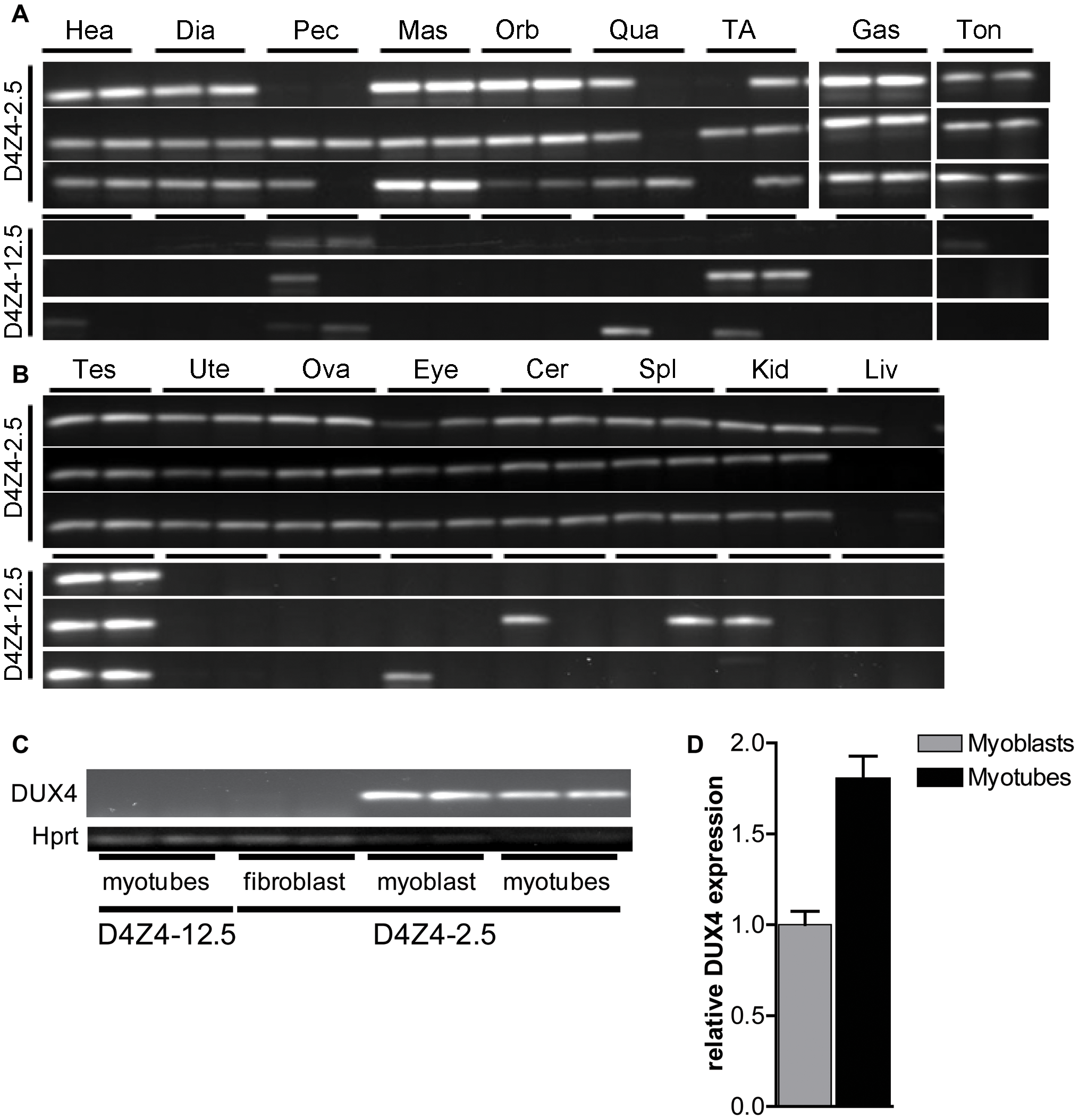 Analysis of transcriptional activity of DUX4 in a panel of tissues of D4Z4-2.5 and D4Z4-12.5 mice.