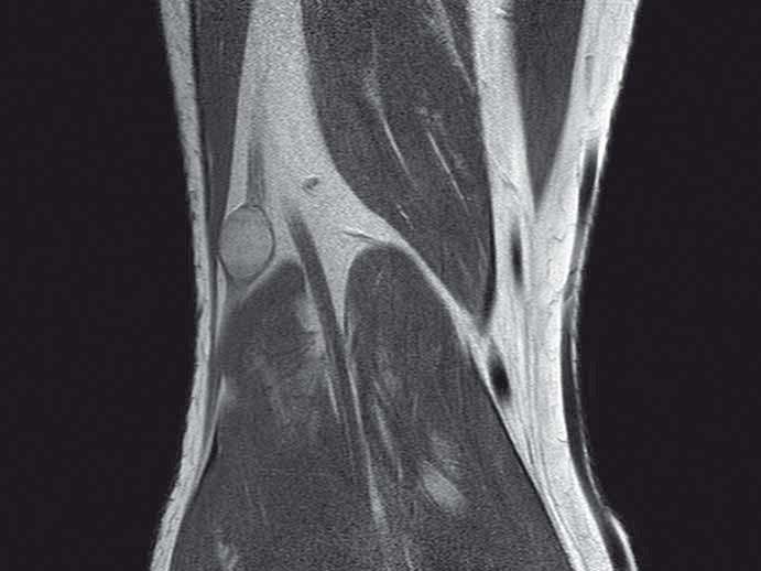 MR vyšetření popliteální jamky, PDW TSE sekvence v koronární rovině, s nálezem benigního schwannomu nervus peroneus communis.