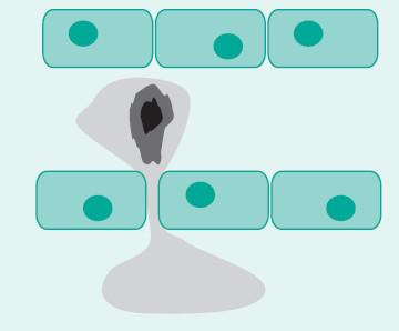 Monocyt pronikající do cévní stěny – počátek aterosklerózy nebo žilního onemocnění?