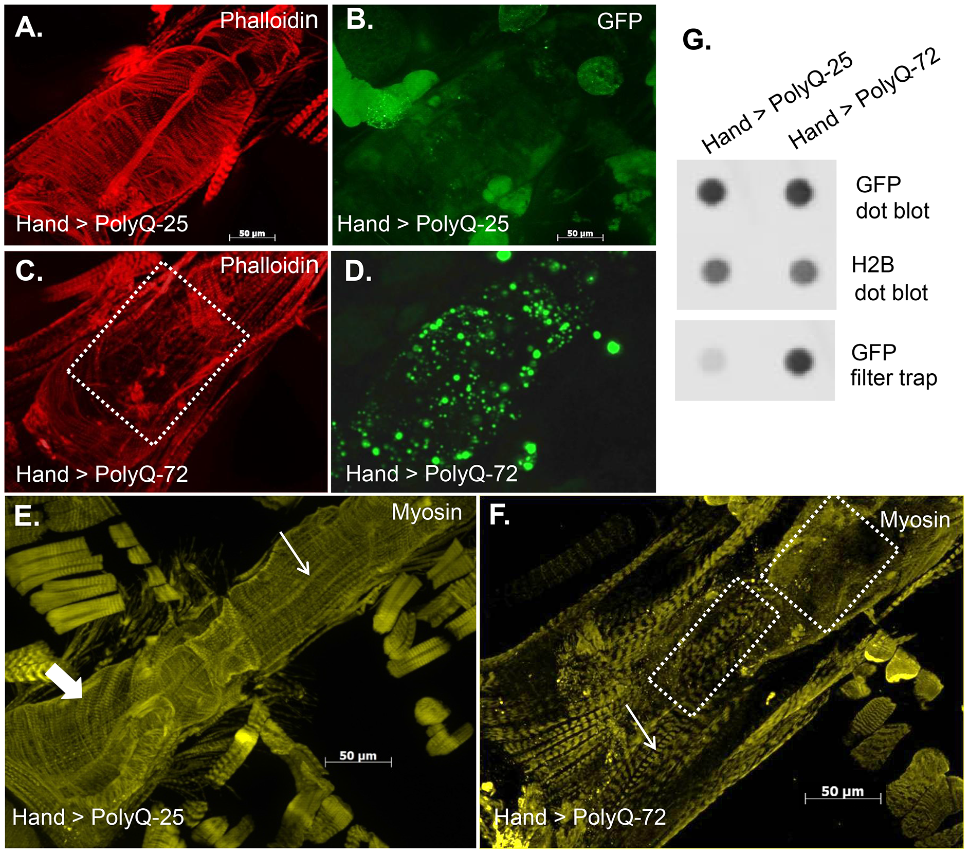 Mutant PolyQ causes structural defects and GFP-positive aggregates in the fly heart.