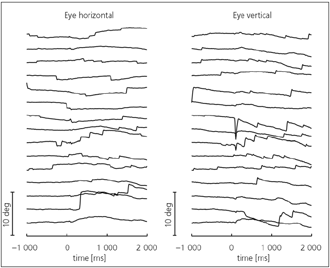 Fig. 3. Horizontal (left) and vertical (right) eye movements before and during 15 cycles of neck vibration in one representative subject.